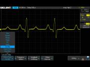 Option Siglent SDS2000X : Générateur de fonctions 25 MHz